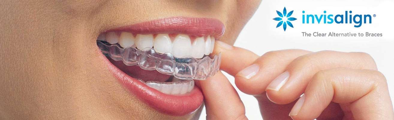 kenosha-orthodontist-braces-invisalign